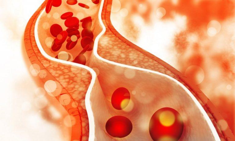Χοληστερίνη και Κετογονική διατροφή